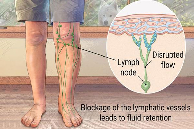 What is Lymphedema, Caused It and How is It Treated?